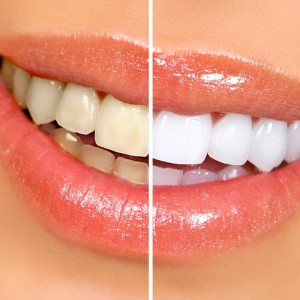 Teeth Whitening at Garland Dental Office